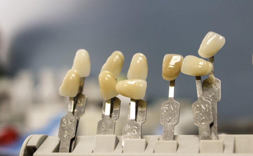 Ładne zdrowe zęby także olśniewający uroczy uśmieszek to powód do zadowolenia.